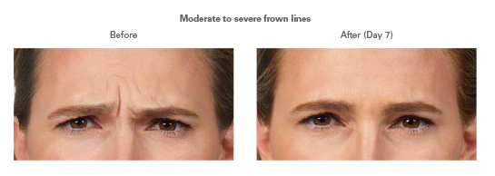 Who Is The Best Botox Dermatologist In Beverly Hills And Los Angeles